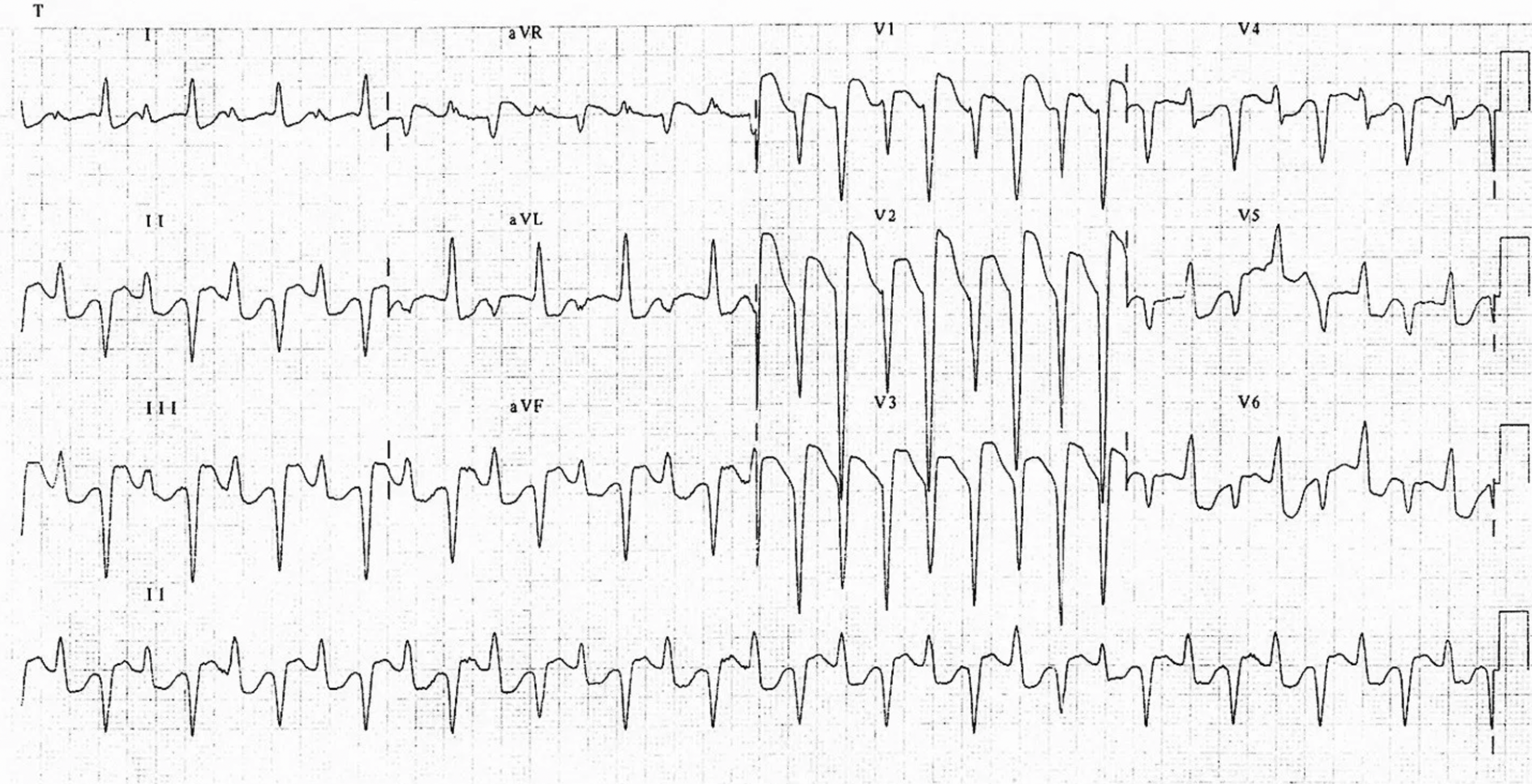 1. This is a classic dysrhythmia secondary to  which  toxicity?  2. What is a classic, more subtle finding you can see when the patient in normal sinus rhythm?