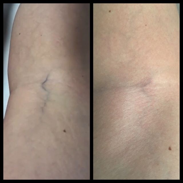 ✨Laser vein therapy is the best way to achieve agelessly smooth  legs💃🏻💃🏻💃🏻 #resultsyoucansee #summerlegs #angelenvy #sexysmoothlegs #professionaltech #laserveinremoval ✨(407) 878-7300 to book ✨