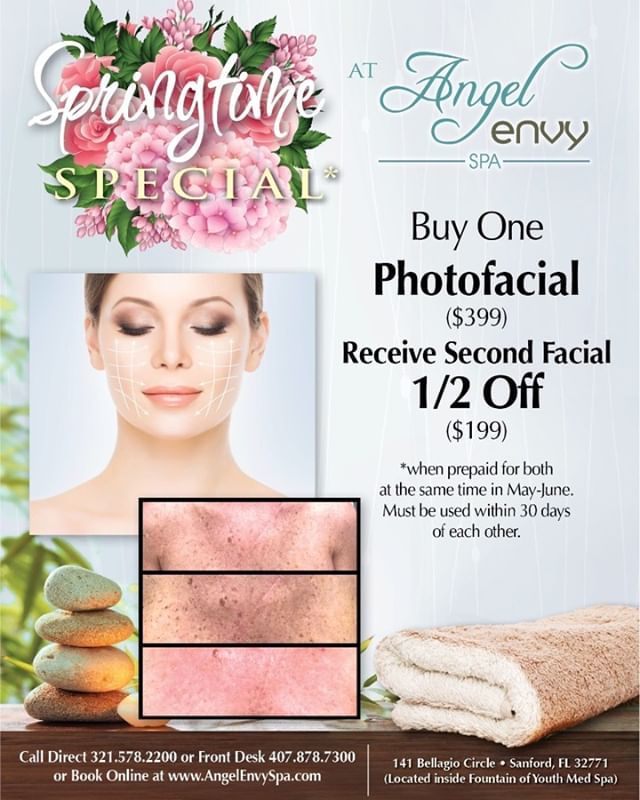 #brownspotremoval #hyperpigmentationexpert #flawlessface 💆🏼‍♀️💆🏻‍♀️💆🏽‍♀️ Medical grade PHOTOFACIAL sale! Enjoy this offer while it lasts ! #halfoffsale #photofacials  #indulge ✨ (407) 878-7300 to schedule✨