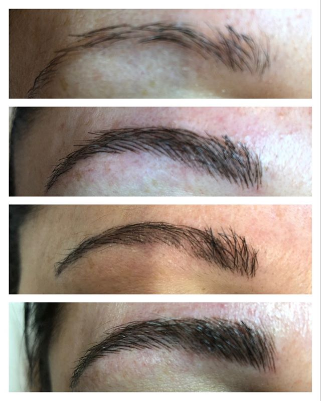 Microblading has stages: O N E - assess the brows T W O - 1st session T H R E E - 6 weeks later F O U R - final touch up    Microblading truly is transformative!  Artist: Claudia F.  #microdblading #milfordmicroblading #ciaobellabeautybar #browtransformation #milfordsalon