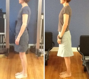 90DayBefore-After-300x266.jpg