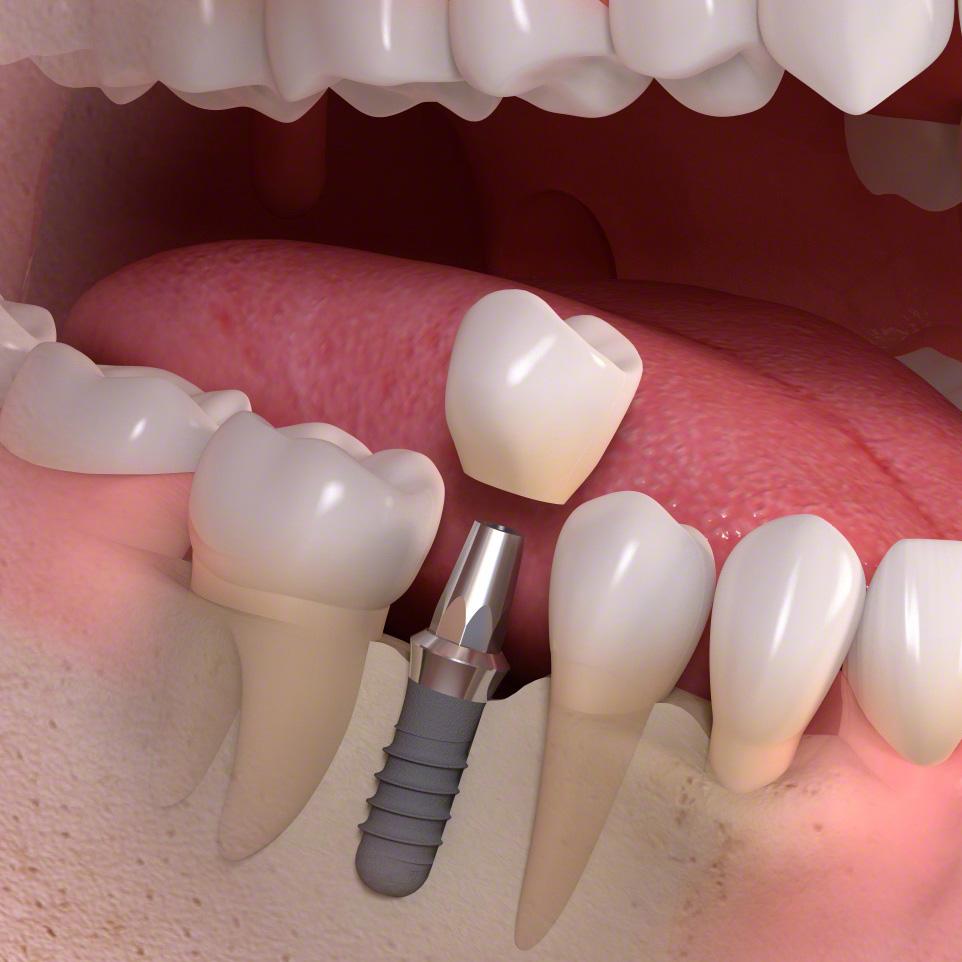 Implant-borne_single-tooth_treatment_03.jpg