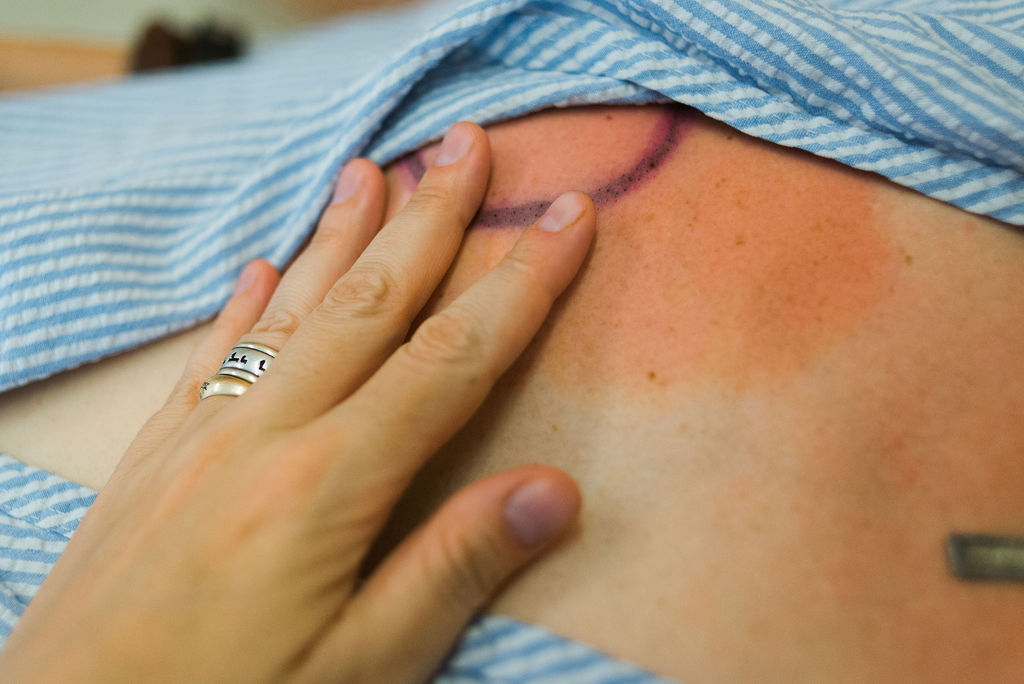 Near her final radiation treatment, Anna's breast is burned and she experiences sharp shooting pains.