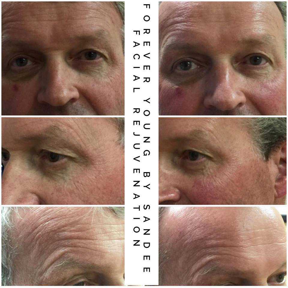FacialRejuvenationA.jpg