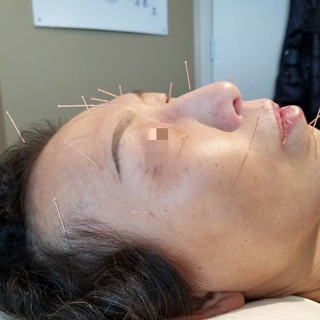 Acupuncture for facial rejuvanation! . . . . . . #acupunctureneedles #facialrejuvenation #nowrinkles #facialacupuncture #stressrelief #facialtreatment #cosmeticacupuncture #migraines #headaches #surreybc #whiterockbc #lingliacupuncture