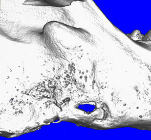 Regenerated mandibular bone