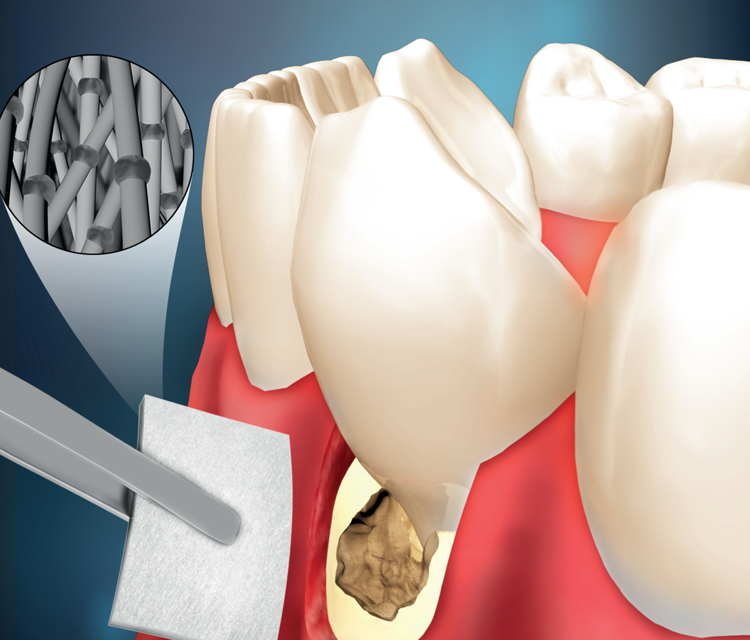 Cure for gum disease - Development and characterization ofa novel multifunctional membrane for periodontal tissue engineering.