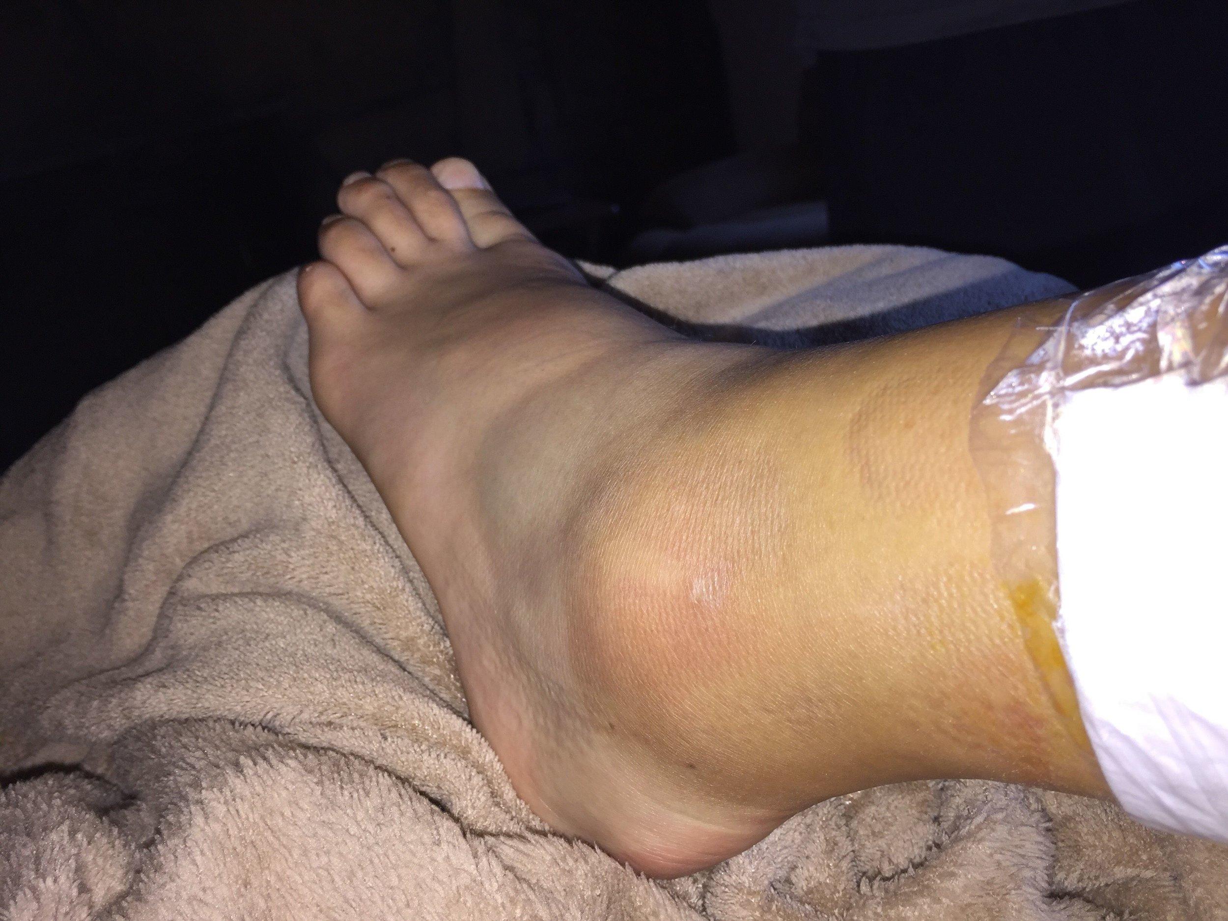 ankle-1.jpg