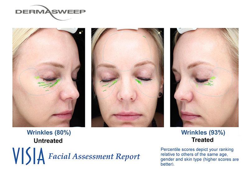 DermaSweep_Before_and_After_Eye_Area_PremiumFusions_Visia.jpg