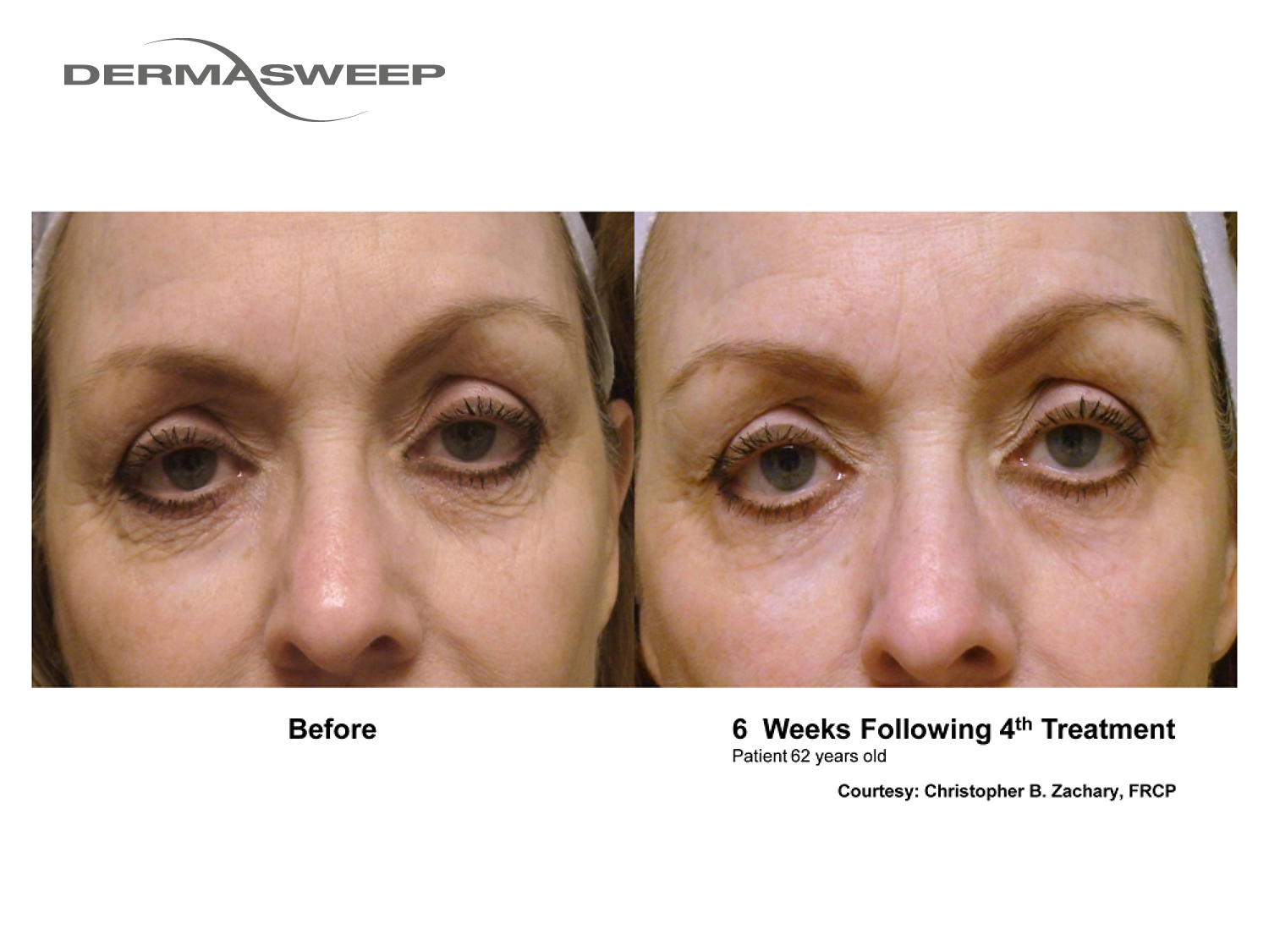 DermaSweep_Before_and_After_Images_Eye_Area_2.jpg