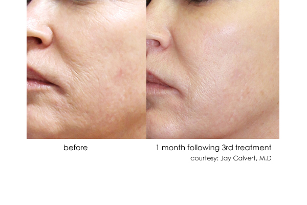 DermaSweep_Before_and_After_Tone+Texture_3.jpg