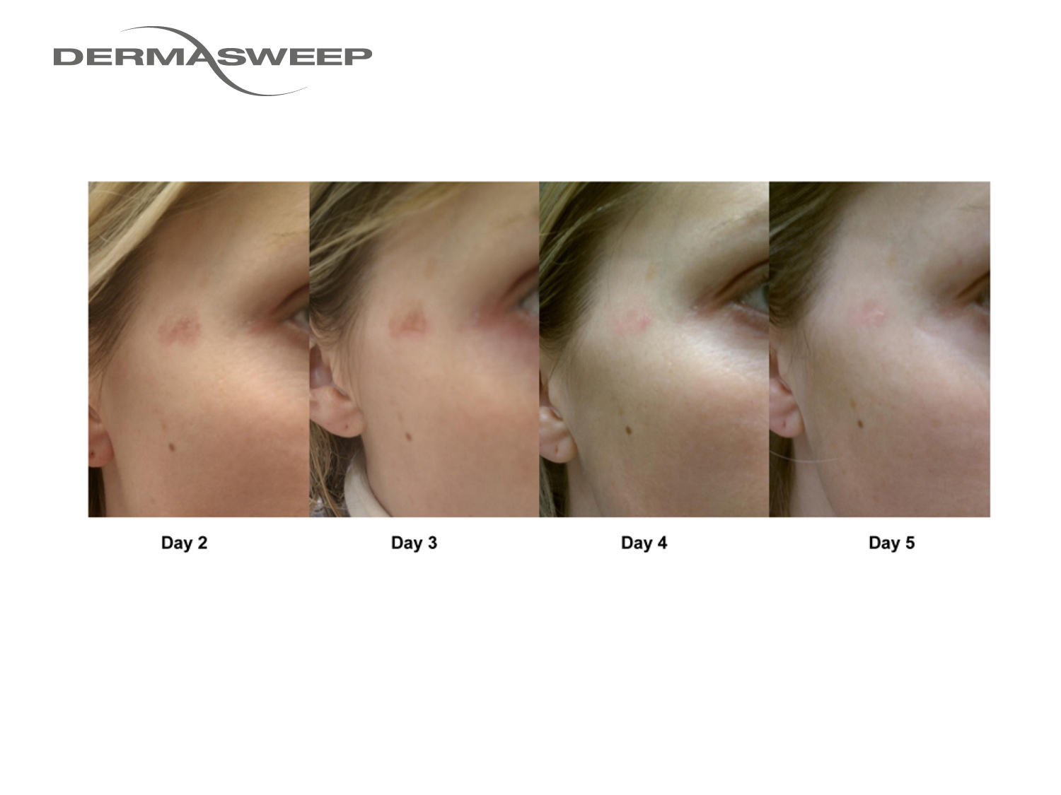 DermaSweep_Before_and_After_Pigment_PeelFusions.jpg
