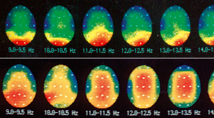 Sur cette photo, on voit que la couleur rouge (ligne du haut), représentant l'onde ALPHA, au départ localisée à l'arrière de la tête lorsque l'on ferme les yeux, après 10 min de lumière pulsée, envahit tout l'encéphale (ligne du bas) ce qui signe clairement le flottement global de l'attention opéré par le PSiO.   Stéphane Krsmanovic - 1995