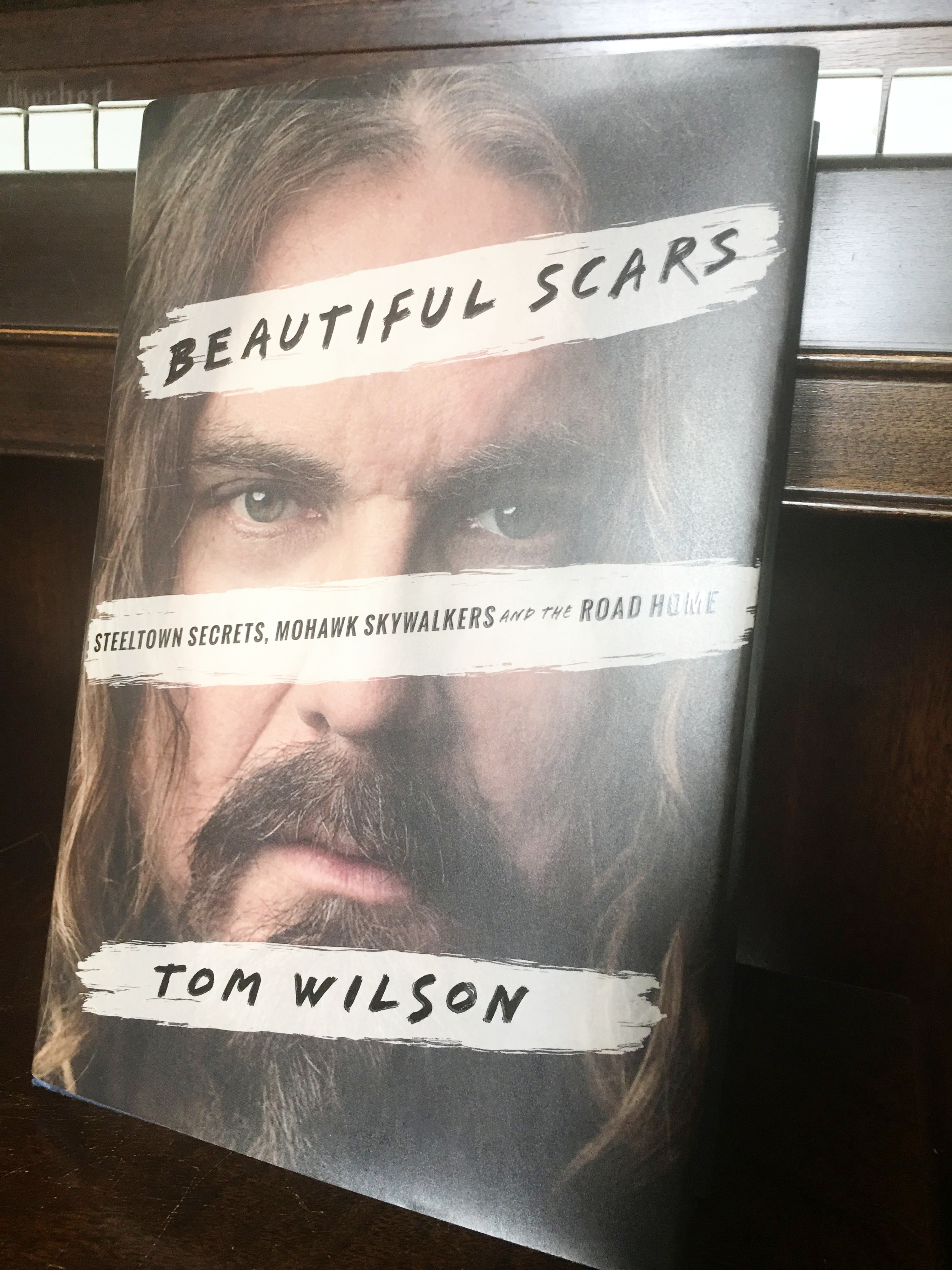 beautiful_scars.jpeg