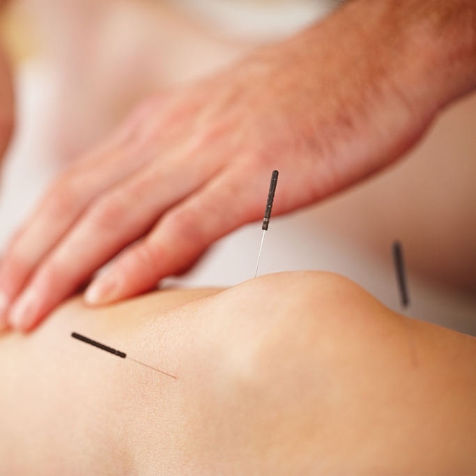 Embody Physiotherapy dry needling Currimundi