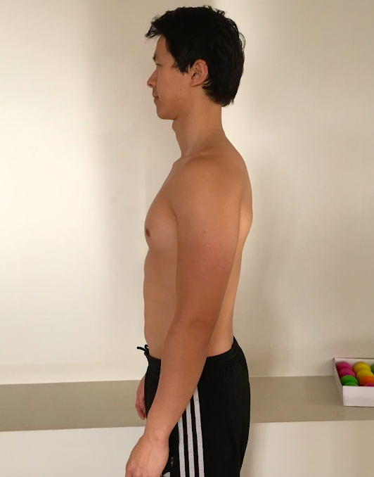 Before Posture - Side