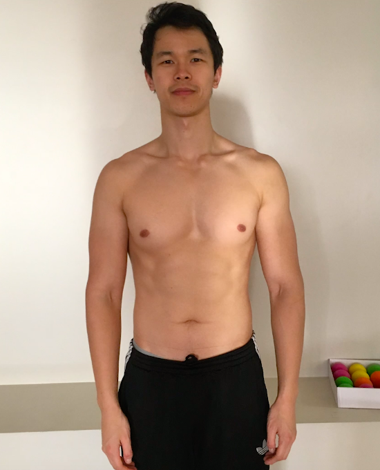 Before Posture - Front