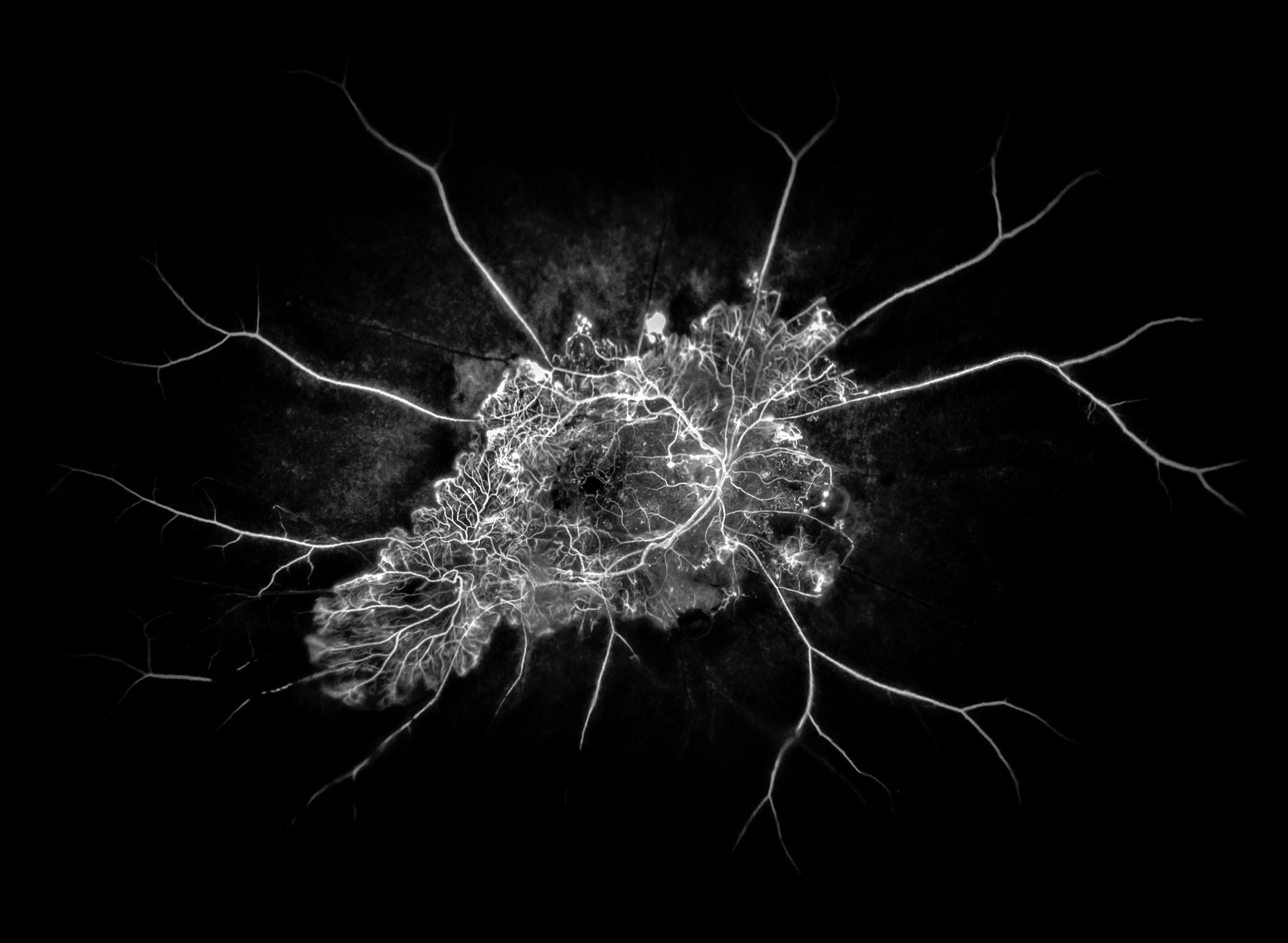 1st place FA/ICG Angiography