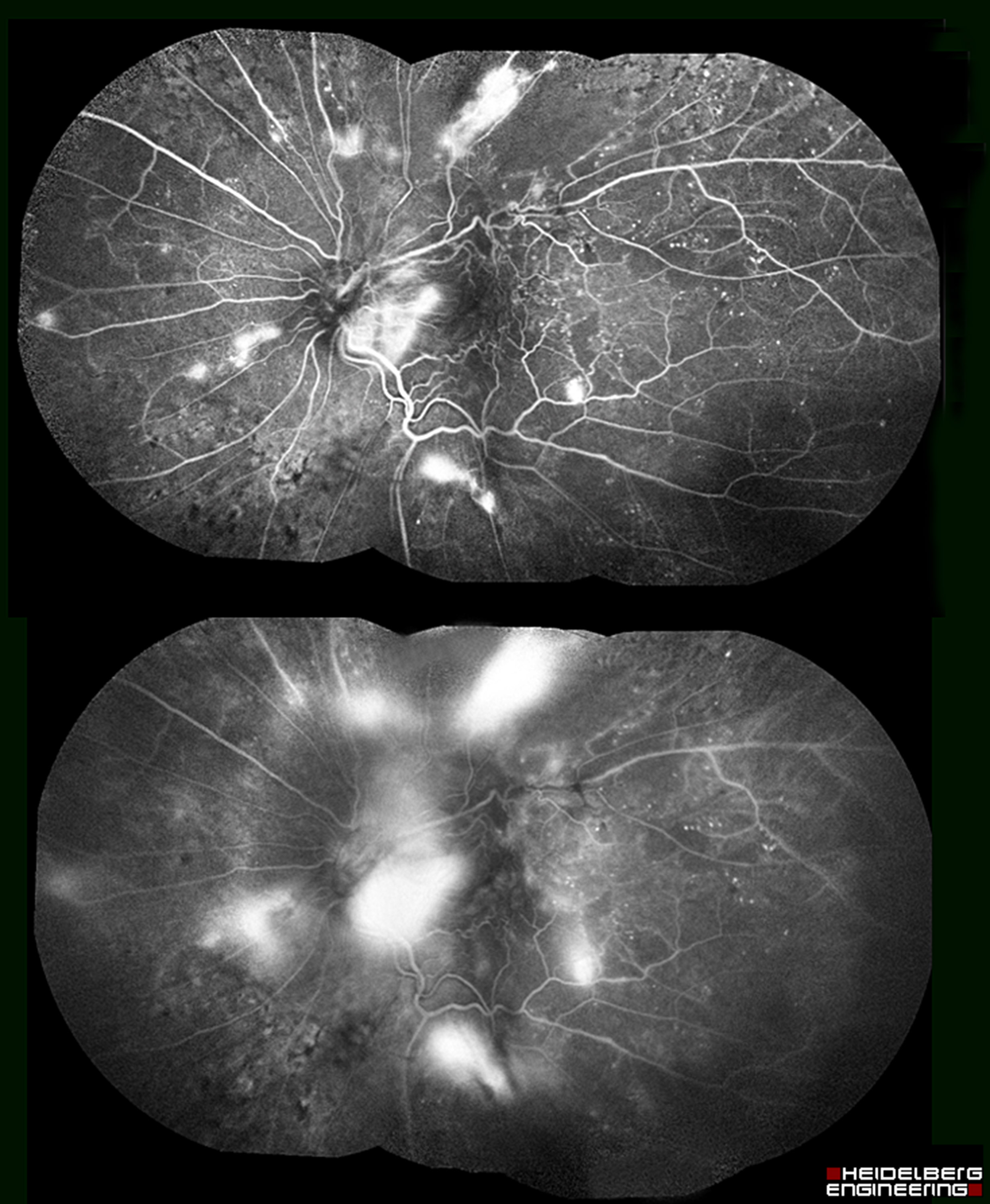 2nd place FA/ICG Angiography