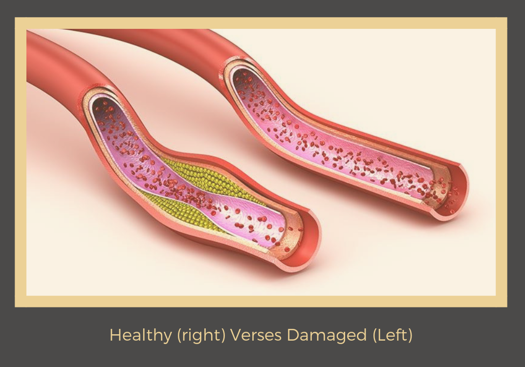 Healthy (right) Verses Damaged (Left).png