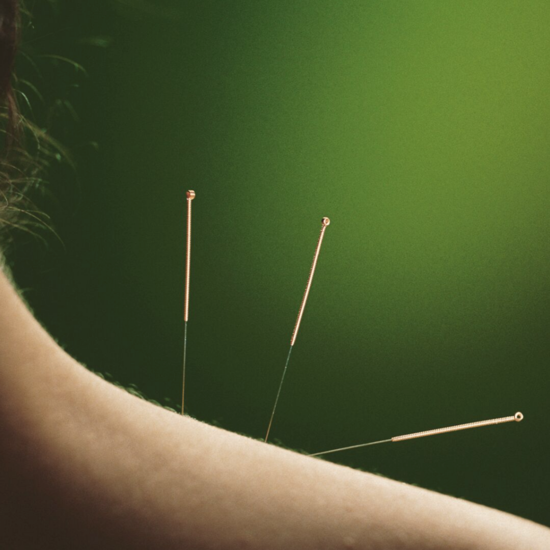 Acupuncture - GIAM  (1).png