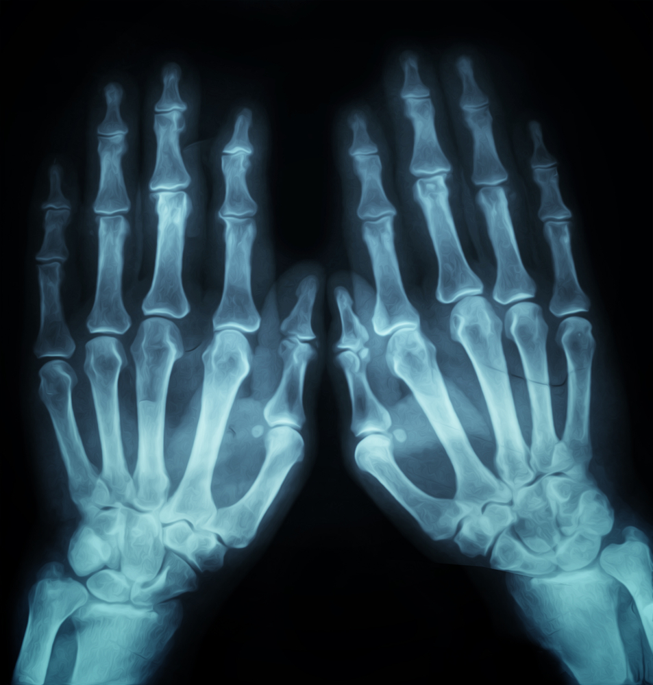 x ray hand_15 facts.jpg
