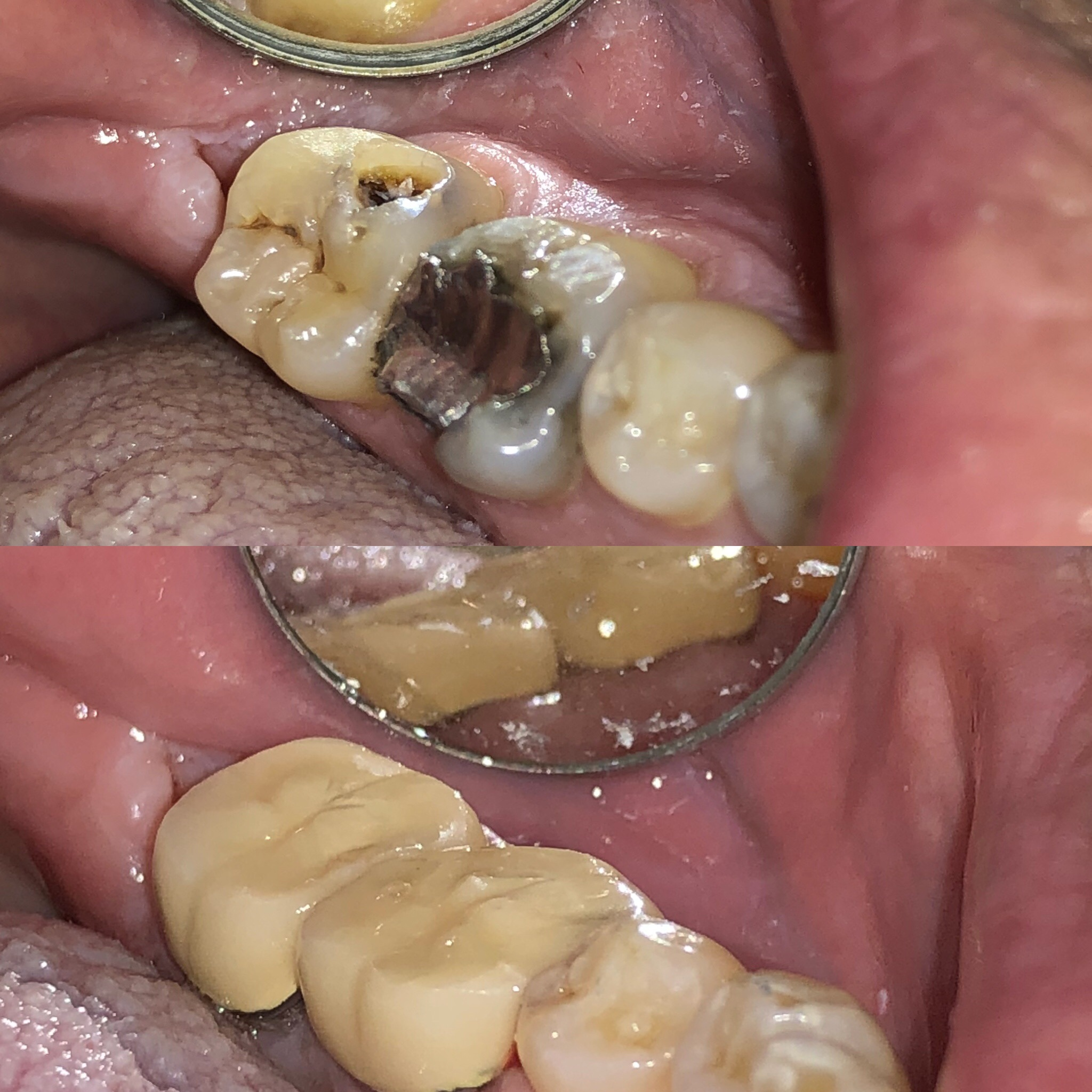 Decay Removal and Crowns