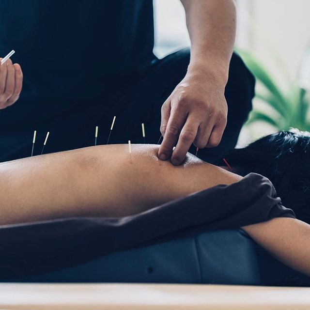 Let's get straight to the point and balance the body's energy, stimulate healing, and promote relaxation with top-of-the-line acupuncture treatments, exclusively at #LiveandBreathe.