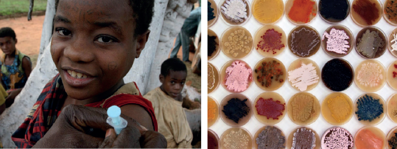 Left: a child receives medication, Right: bacteria colonies can vary in color, shape, and texture. Photo credit: hdptcar, P. Turconi/Fondazione Istituto Insubrico di Ricerca per La Vida