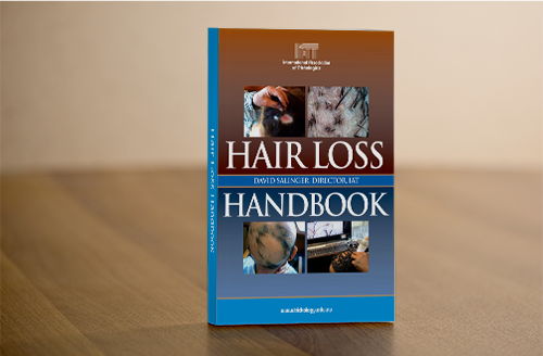 hairlosshandbook-mock.png