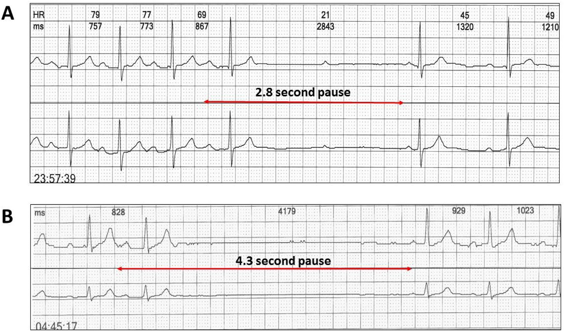 Figure 2  Two channel Holter monitor recordings of atypical Wenckebach AV sequences due to abrupt nocturnal slowing. A: Wenckebach AV sequence with a 2.8 second pause coinciding with the dropped beat. B: Wenckebach sequence interrupted by a 4.3 second sinus pause and hence no dropped beat.