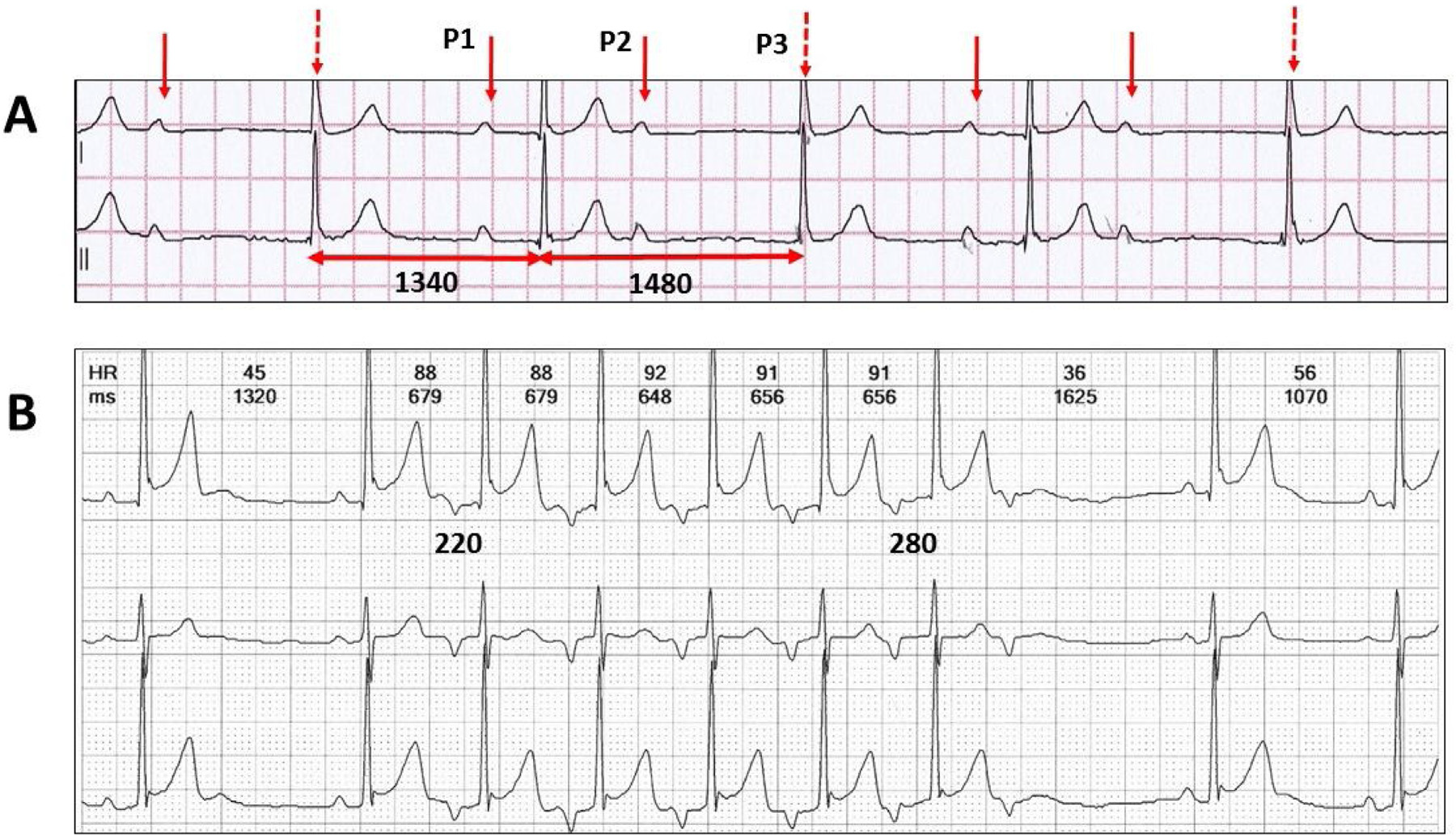 Figure 3 A: Two channel Holter monitor recording of an atypical Wenckebach AV sequence without an easily identifiable pause. There are different ways to interpret this tracing. P3 is concealed, whereas P2 may not conduct or has a very long PR interval. The QRS associated with P3 may be a junctional escape beat. This may be a 3:1 Wenckebach AV sequence with junctional escape. B: Three channel Holter monitor recording of a Wenckebach AV sequence during junctional rhythm.