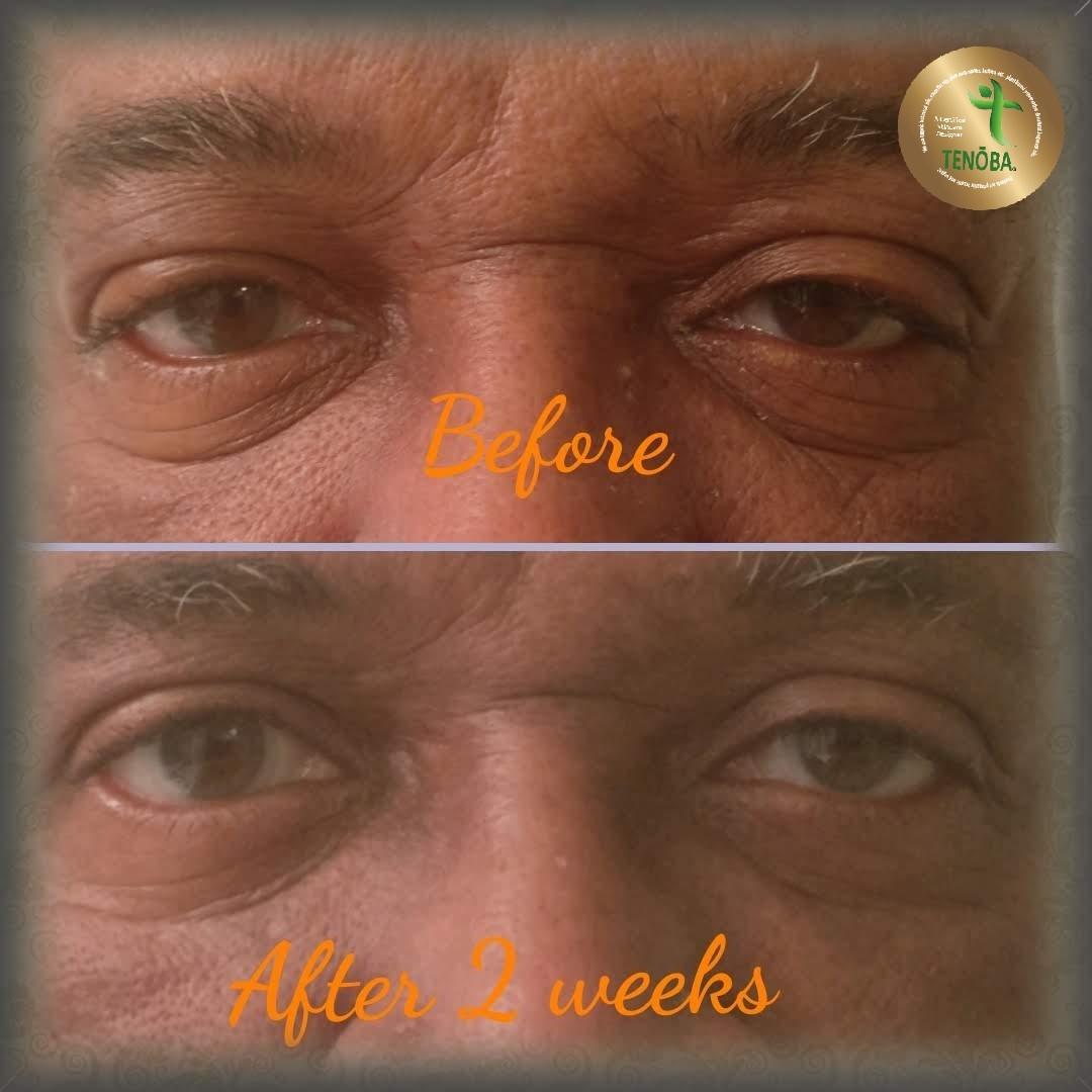 Client Using Eye Gel