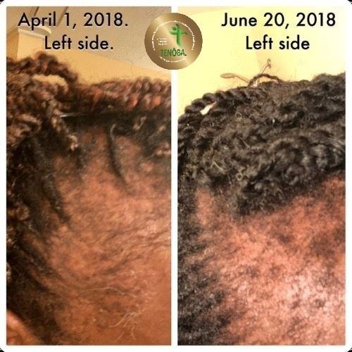 Client Using Hair Serum
