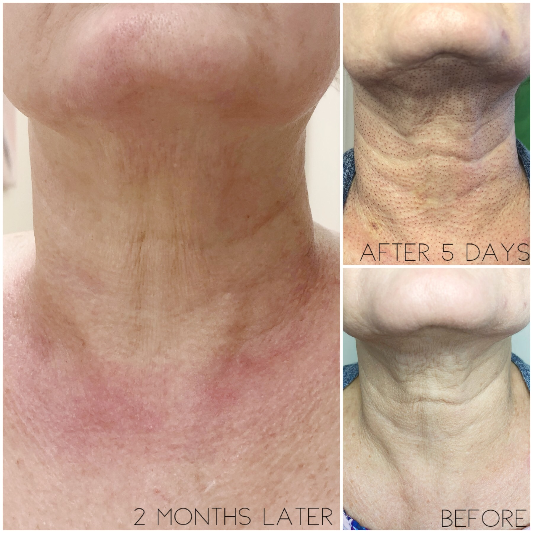 AskCares client's results after 1 Fibroblast Skin Tightening treatment.