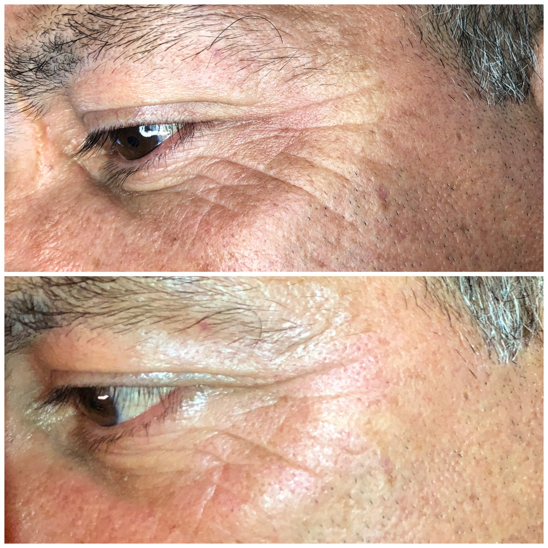 AskCares client, 1 session of Fibroblast