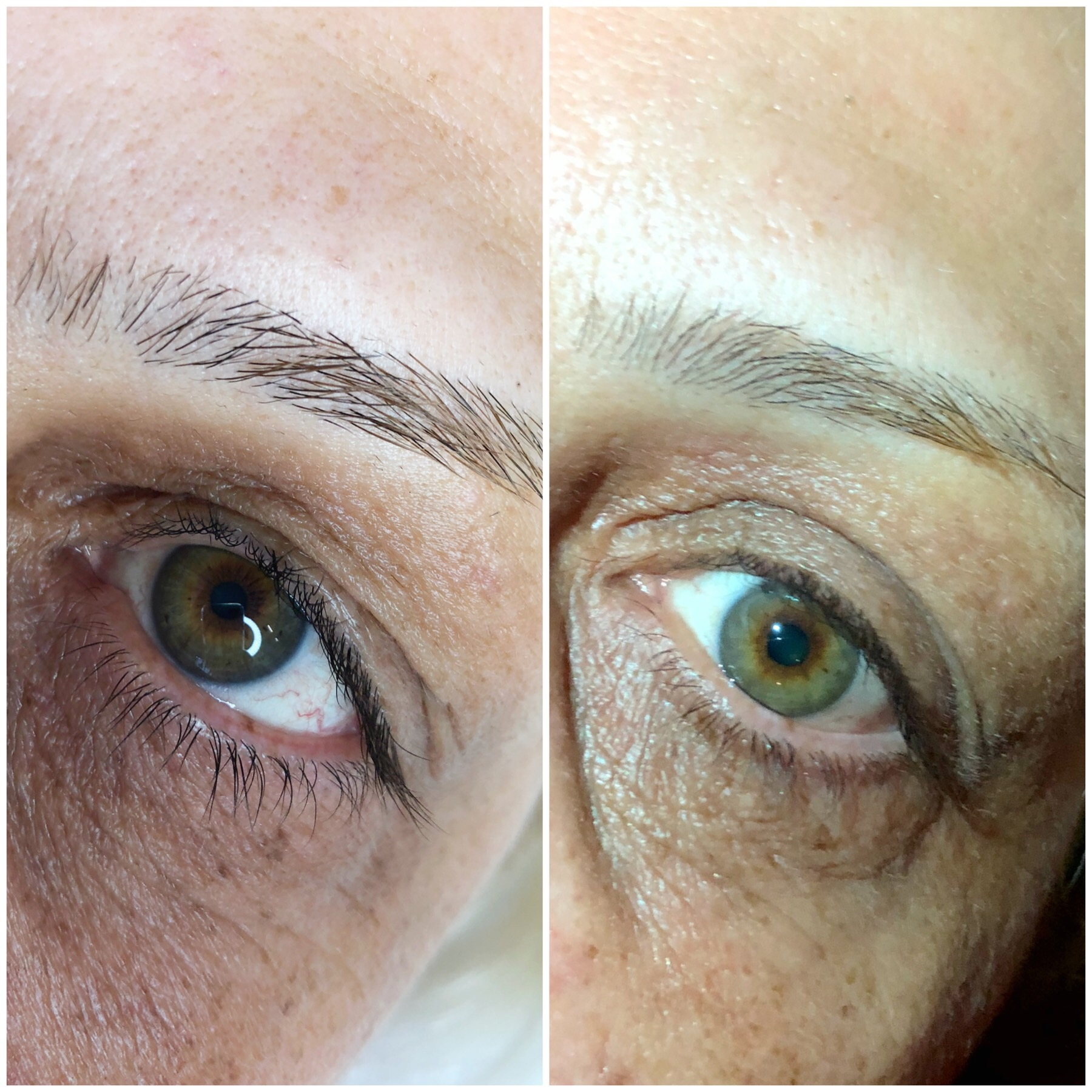 Left: BEFORE • Right: AFTER  Top eye lids are treated with 1 session of Fibroblast at AskCares