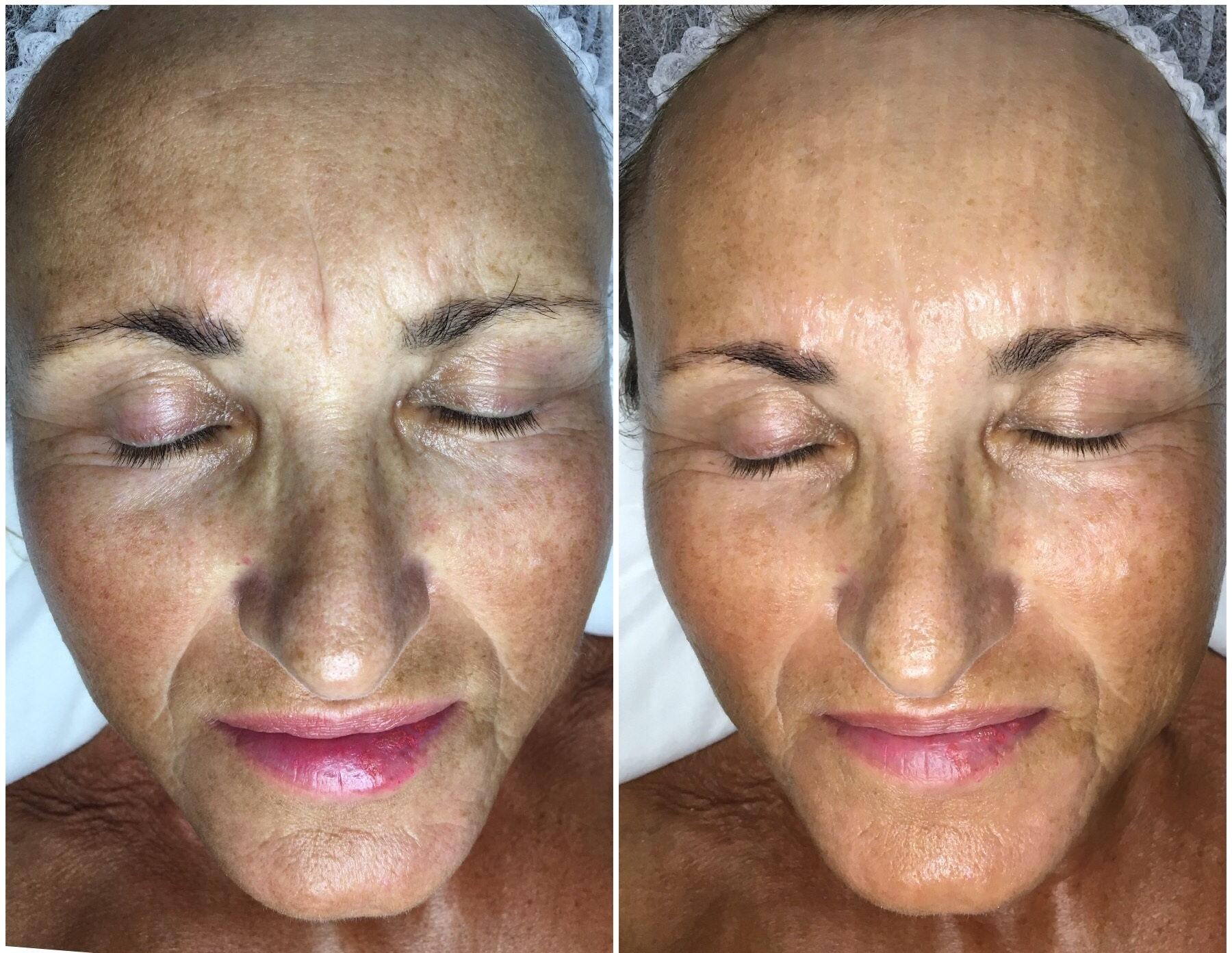 AskCare's client. Session #3 of Face Sculpting Massage Package. Notice significant wrinkle reduction, and overall skin improvements