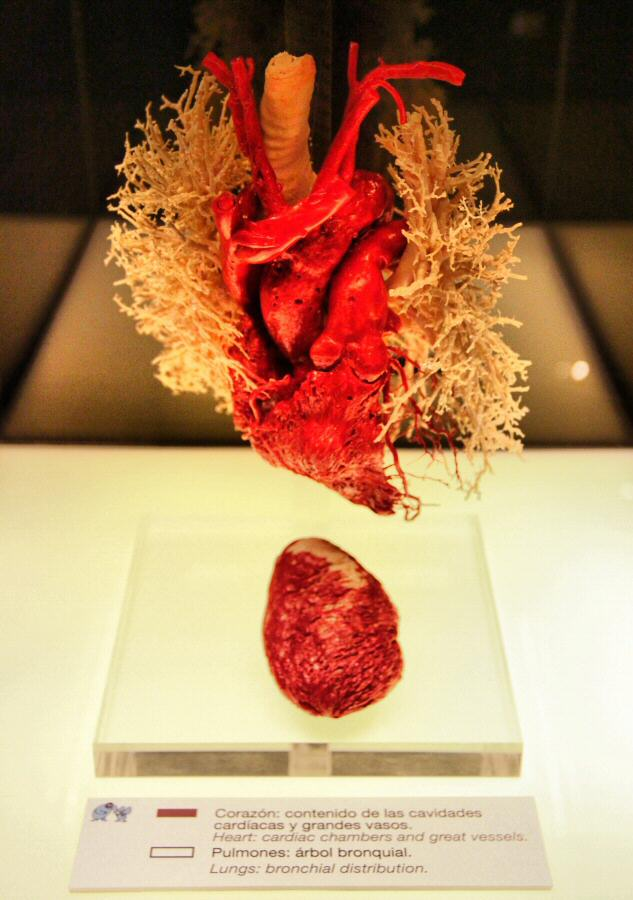 fotos-madrid-exposicion-human-bodies-009.jpg