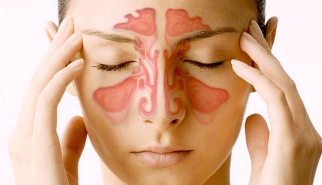 senos nasales.jpg
