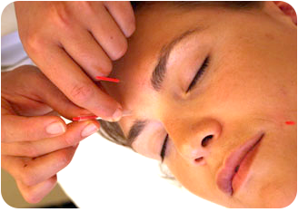 acupuncture 1.png