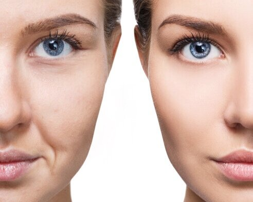 3 areas of anti wrinkle injections £280 - Offer Code: AW57b