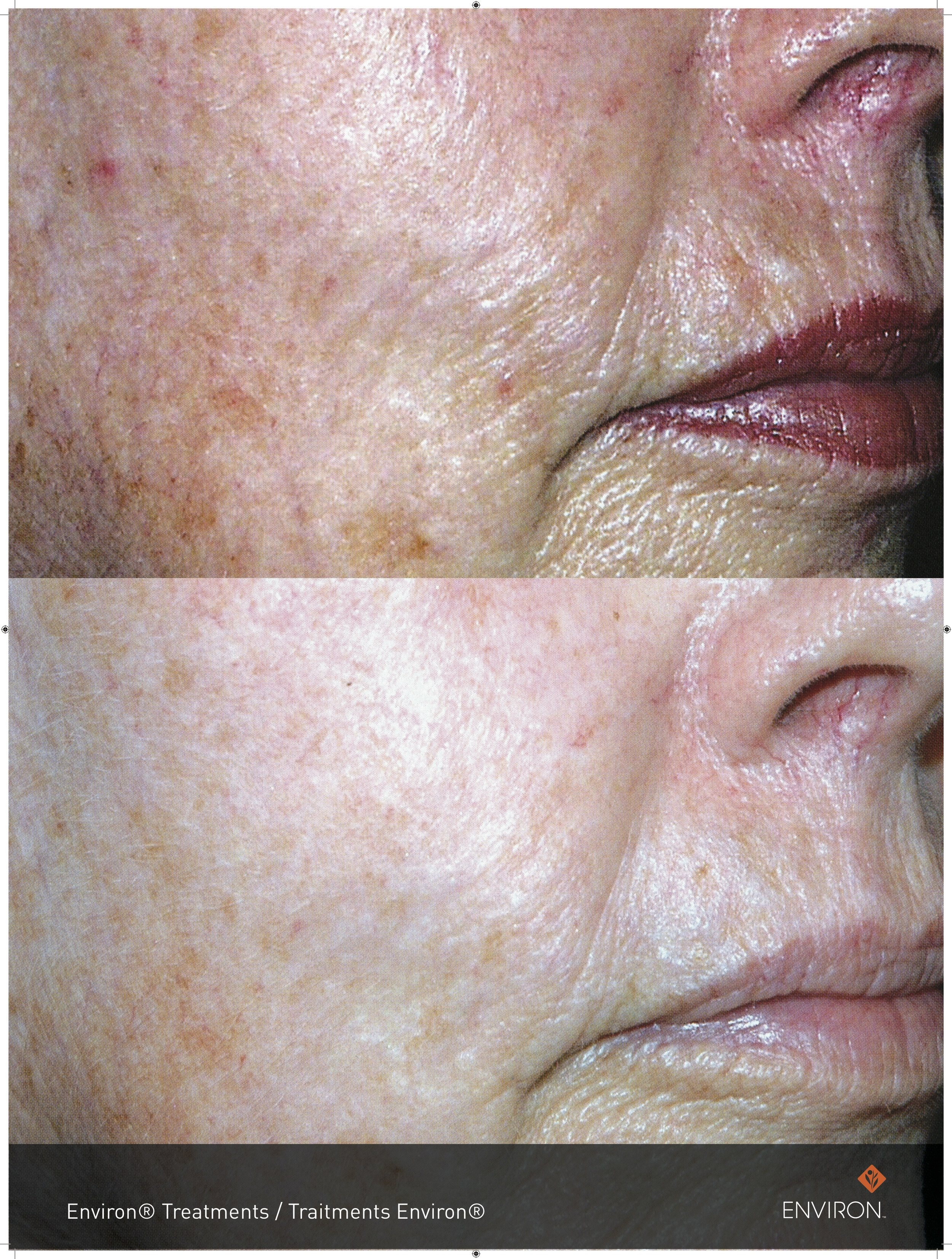 Before and after with vitamin infusion treatments