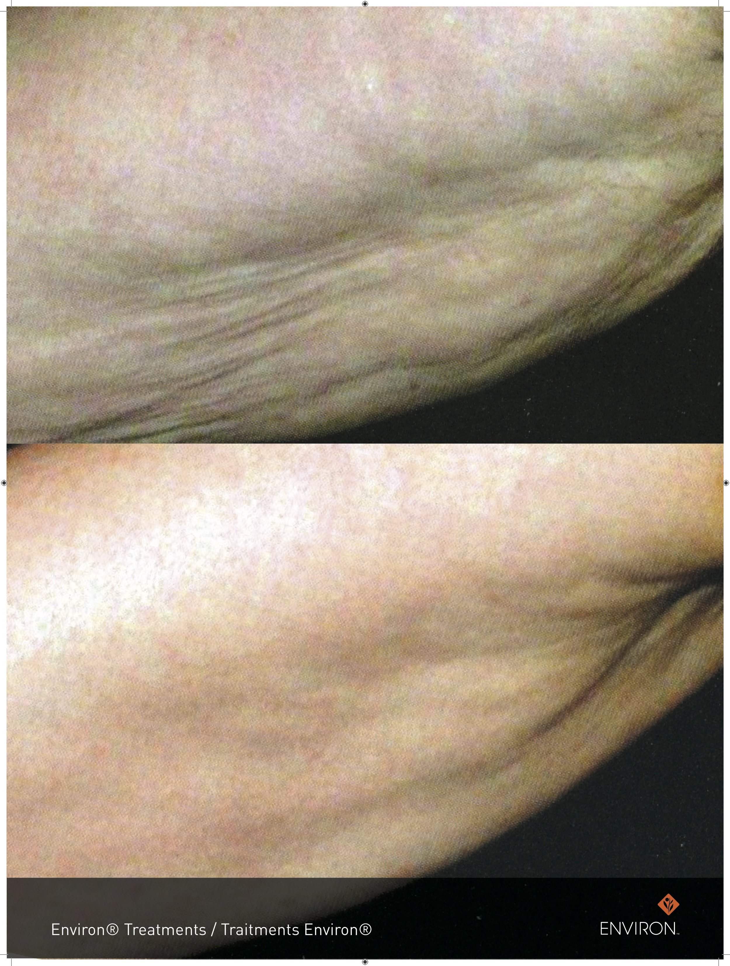before and after with body treatments utilizing body profile infusions for skin tightening