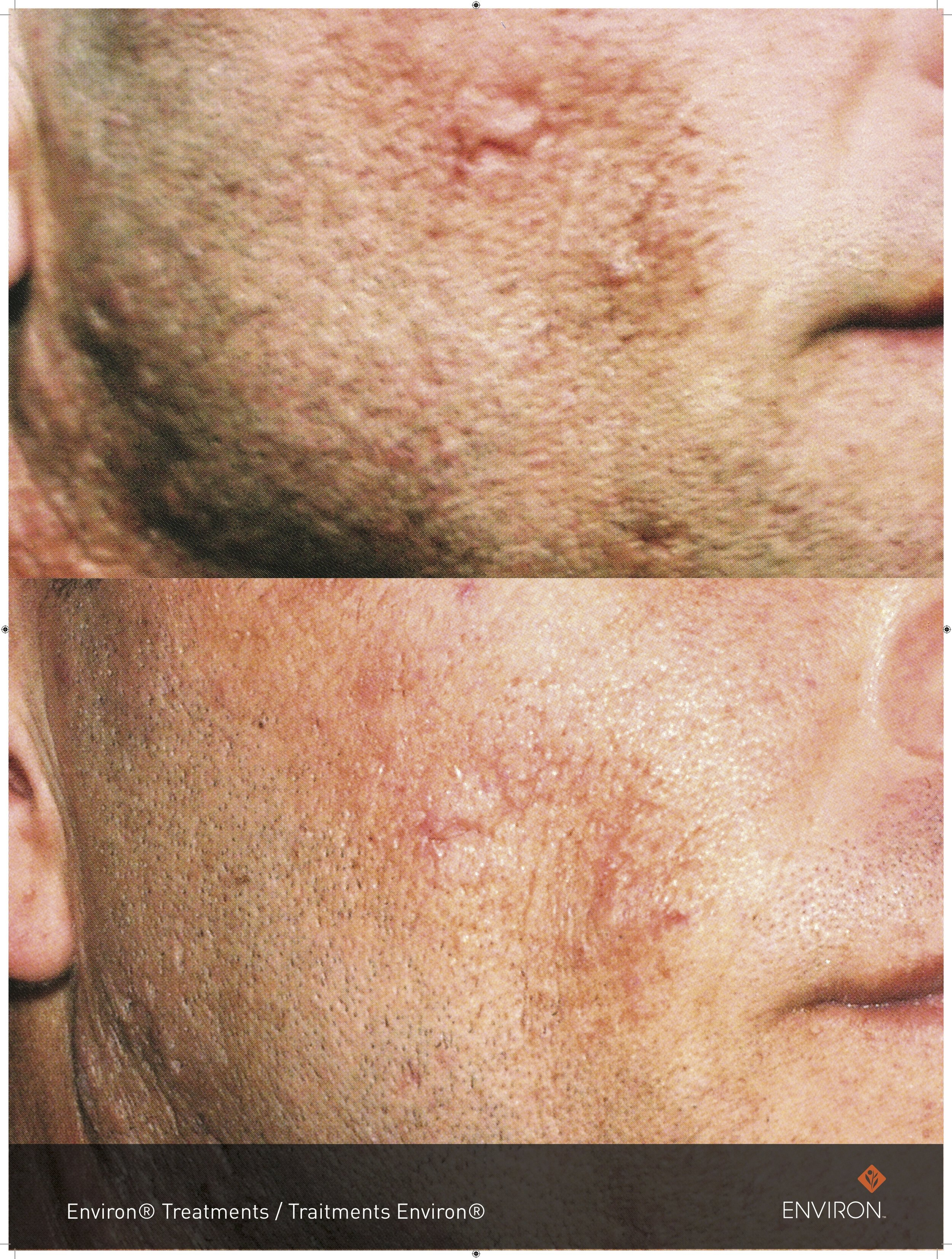 before and after with cool peel treatments and vitamin a infusions