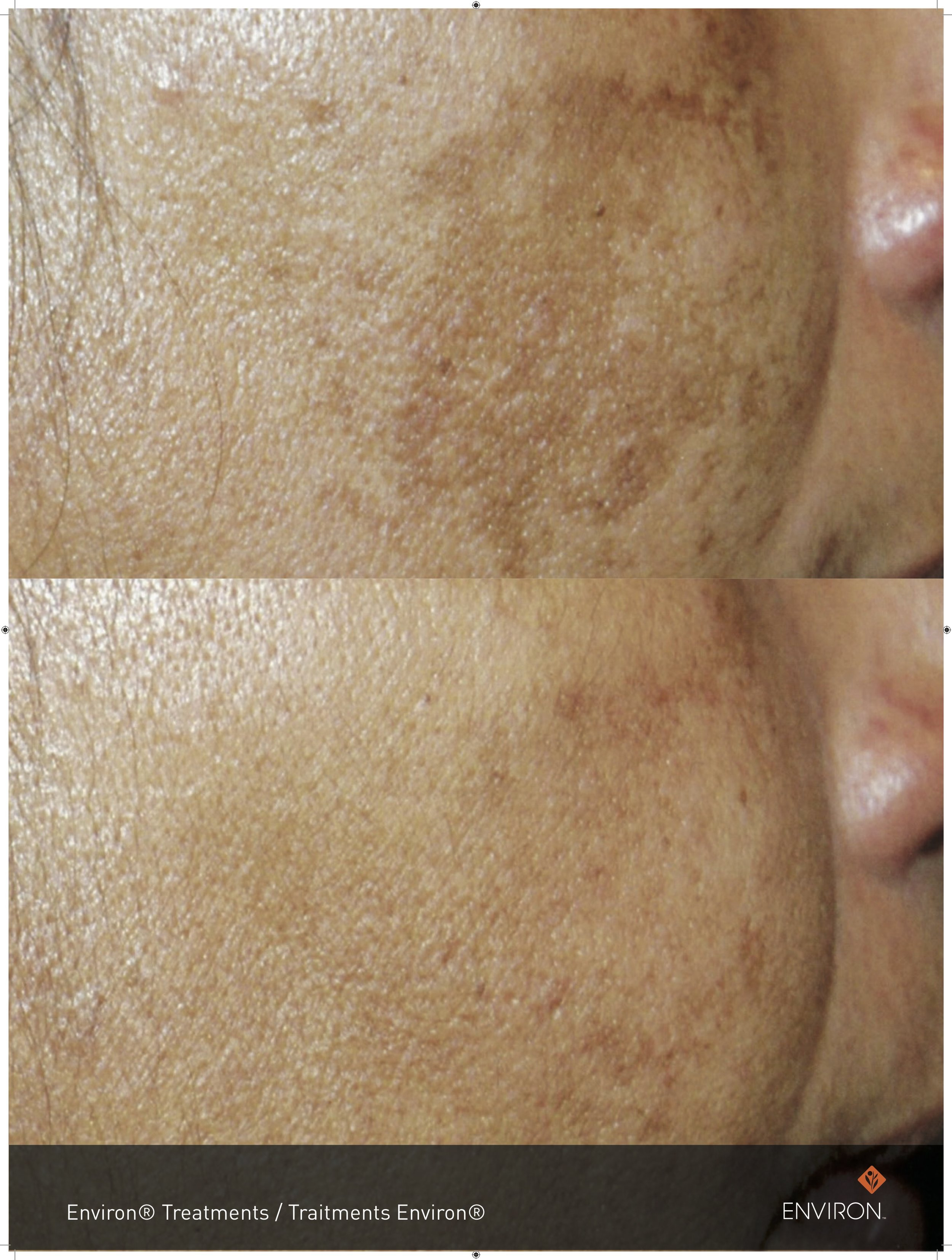 before and after with vitamin a infusions and focus care radiance treatments