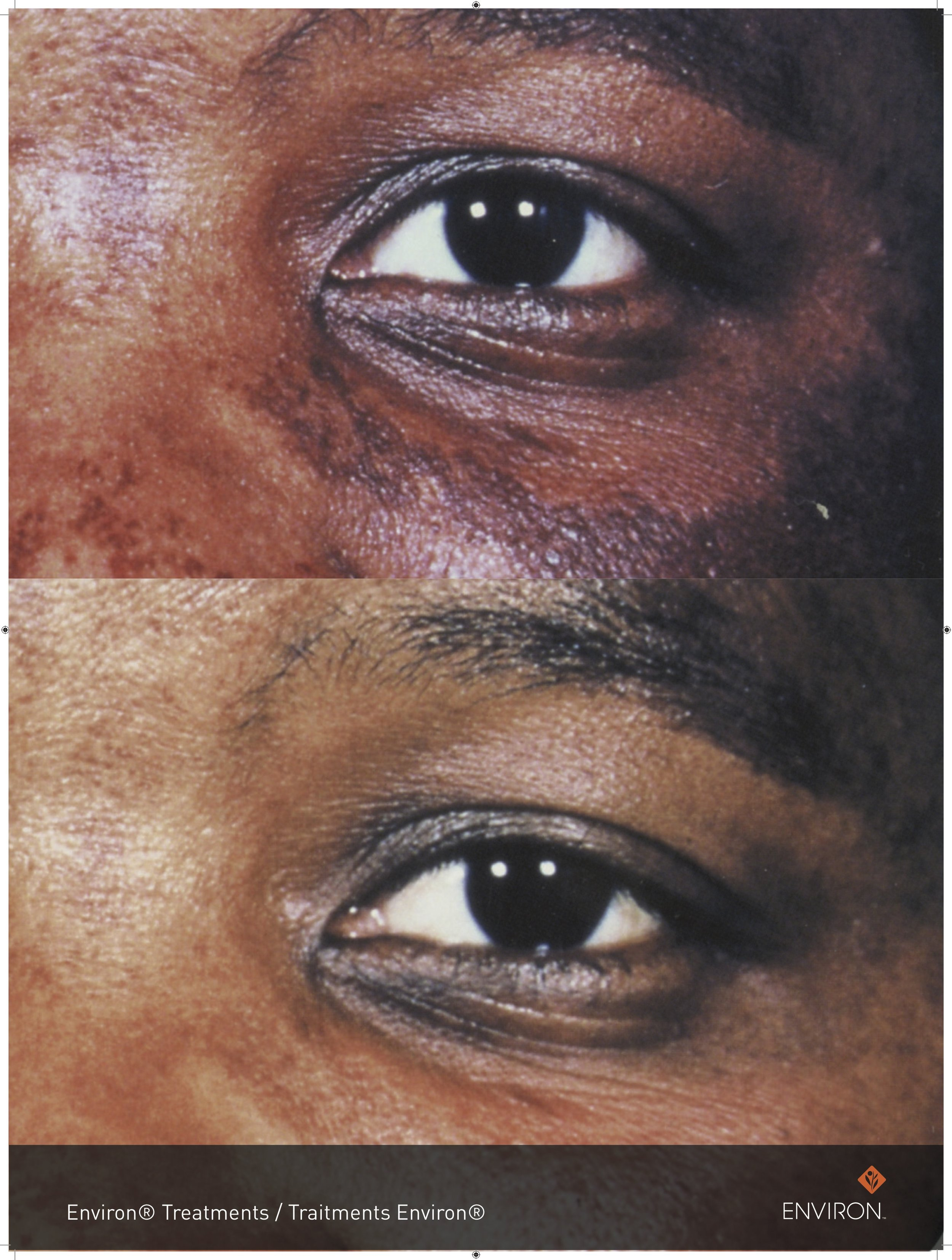 before and after with vitamin infusion treatments and vita-peptide eye gel