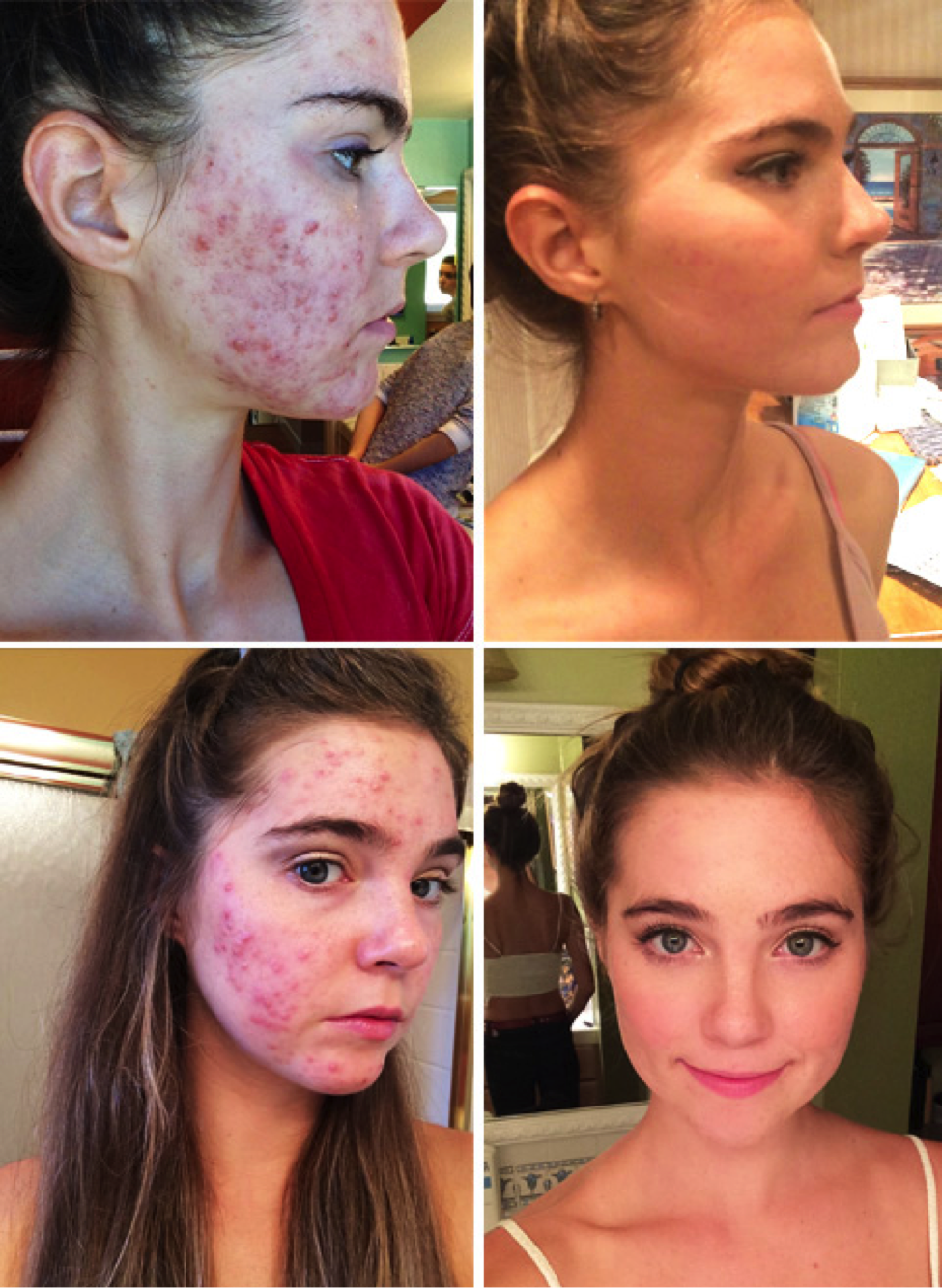 can you improve skin with diet