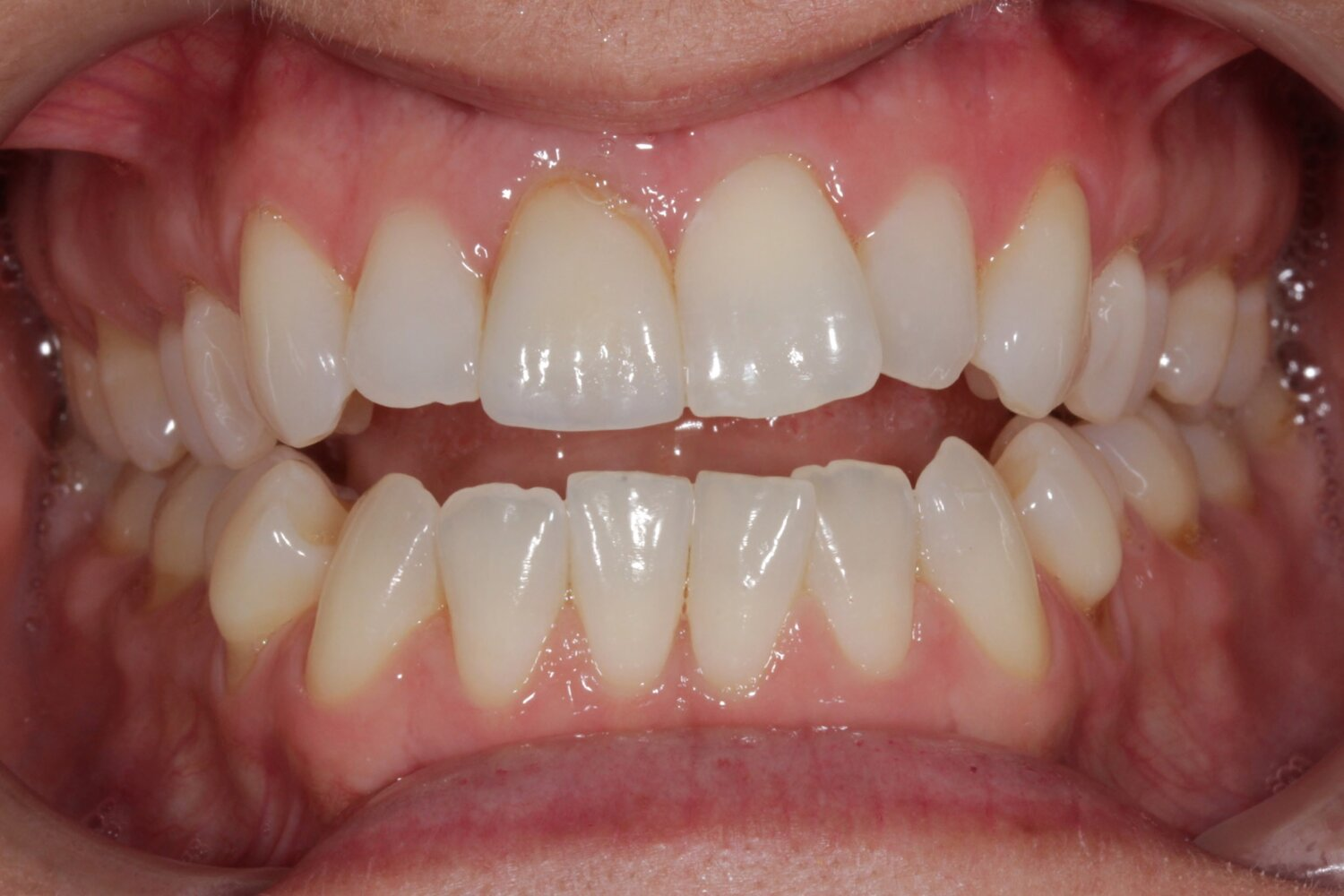 Frontal Intraoral Photo 1.jpg