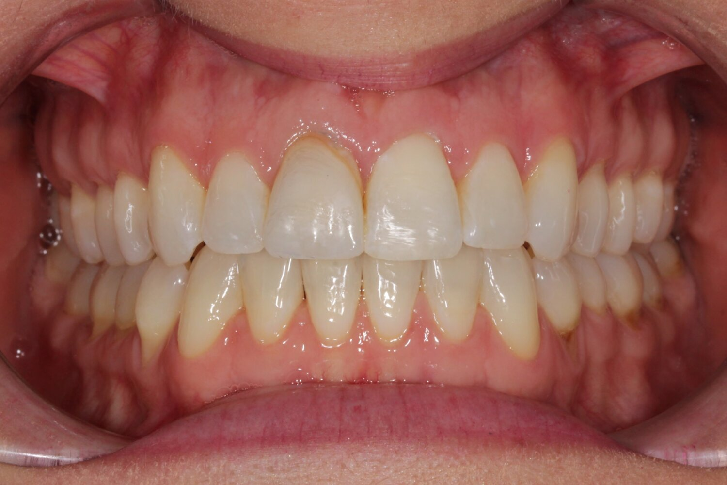 Frontal Intraoral Photo.jpg